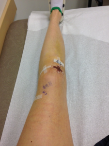 Acl Post Surgery 5 days