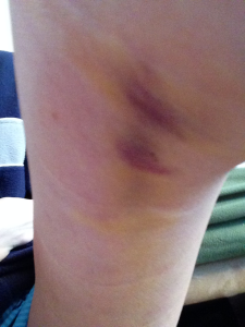bruised back of knee